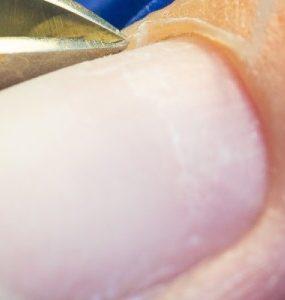 hard skin around nails