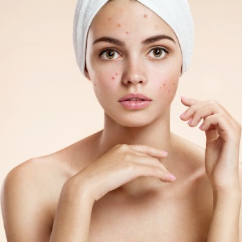 does rosehip oil make your skin purge