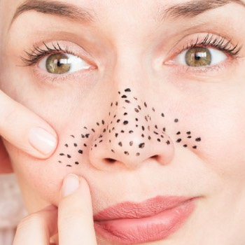 what happens to blackheads if you leave them