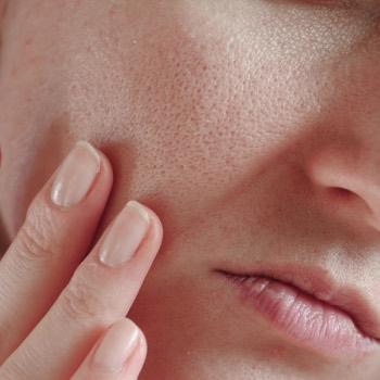 will rosehip oil clog pores